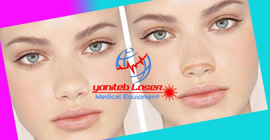 پلاسماجت لیزردرمانی یانی طب لیزر laserinfo.ir